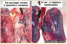 Отказ от курения и планирование беременности